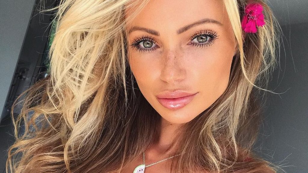 Abby Dowse plastic surgery