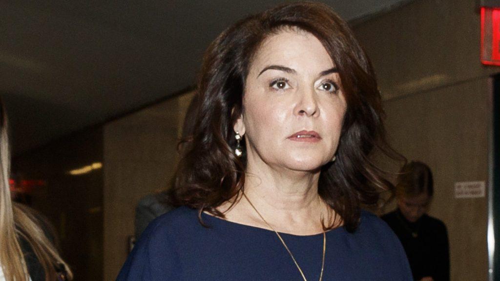 Annabella Sciorra plastic surgery