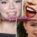 Anya Taylor-Joy botox nose job lips