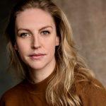 Caitlin Innes Edwards botox lips nose job