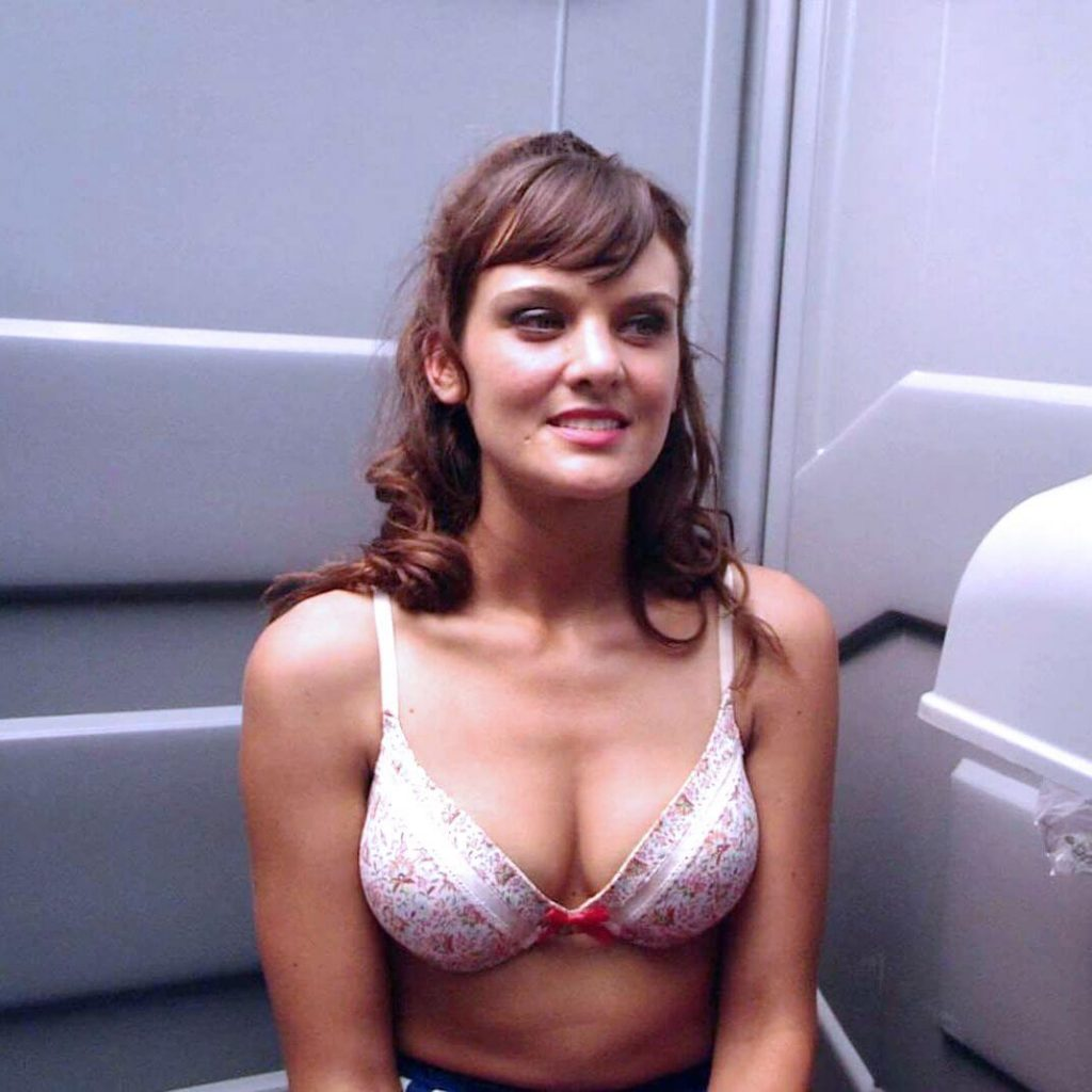 Frankie Shaw before and after plastic surgery