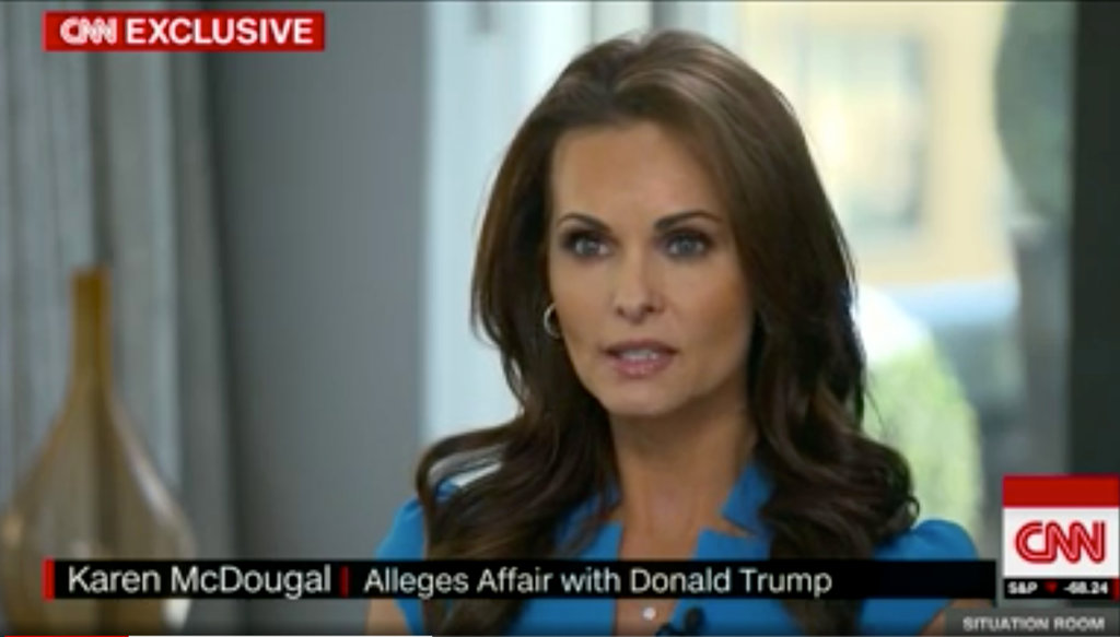 Karen McDougal before and after plastic surgery