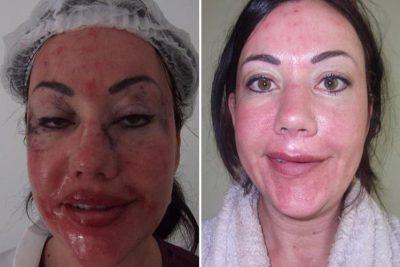 Lisa Appleton facelift lips boob job