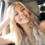 Loren Gray lips facelift botox