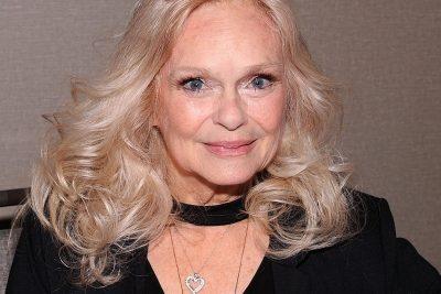 Lynda Day George facelift boob job botox