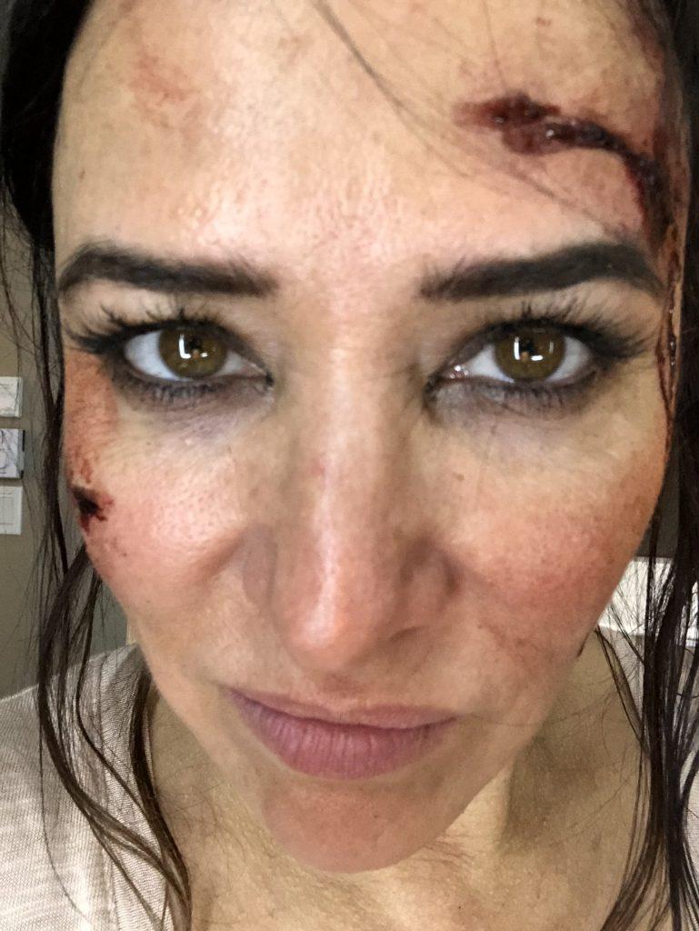 Pamela Adlon plastic surgery procedures